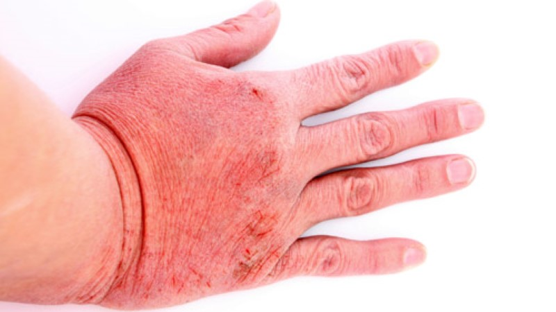 Maleato de Dexclorfeniramina - Bula, para que serve